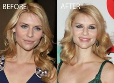 Claire Danes Plastic Surgery Photos