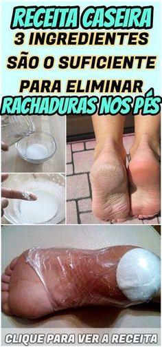 Ficou interessado em melhorar o aspecto dos seus pés e se sentir muito mais a vontade para utilizar todos os tipos de calçados? Então, você só precisa conferir o nosso post! #rachadura #pés #pé #pérachado #receita #tratamento #dica #caseira #remédio #truque #ingrediente #creme #mistura
