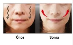 Straffe Wangen durch diese 4 Hausmittel In this post you will find simple, inexpensive tips for firm cheeks and a smoother facial skin. If you want to tighten your drooping cheeks, we recommend that y Beauty Care, Beauty Skin, Health And Beauty, Beauty Hacks, Hair Beauty, Sagging Cheeks, Face Yoga, Yoga Facial, Facial Exercises