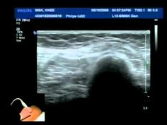 MSK KNEE Demo with Levon Nazarian, MD