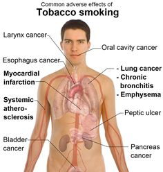 EFFECTS OF TOBACCO SMOKING