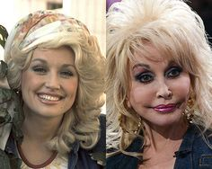 I love Dolly Parton! The pillow face; On another FAIL plastic surgery, her face is wafer thin. Bad Celebrity Plastic Surgery, Botched Plastic Surgery, Bad Plastic Surgeries, Plastic Surgery Gone Wrong, Dolly Parton, Rhinoplasty Before And After, Bad Makeup, Implant, Celebrities Before And After