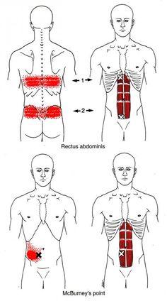 Appendicitis-like Pains - Primary Symptoms @ Rectus Abdominis