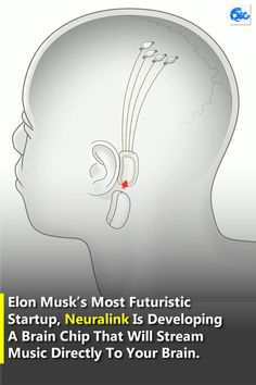 Elon Musk's most futuristic startup, Neuralink is developing a brain chip that will stream music directly to your brain. Elon Musk, New Gadgets, You Are Invited, Your Brain, Tech News, Futuristic, How To Remove, Technology, Music