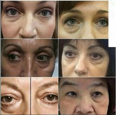 Within 2 minutes, Instantly Ageless reduces the appearance of under-eye bags, fine lines, wrinkles and pores, and last 6 to 9 hius. This specifically designed micro cream targets dreas that have lost elasticity - revealing visibly toned, lifted skin.