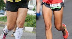 Saiba como detonar os furinhos da região e conheça a história de Giselli Souza, que conseguiu mudar completamente a aparência de suas pernas