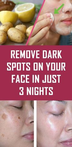 Today we're going to show you how to prepare several recipes that will remove dark spots on your face and other stains on it. The remedies are completely natural, so you don't have to worry about adverse side-effects. Black Spots On Face, Brown Spots On Skin, Dark Spots Under Armpits, Dark Spots On Legs, Lighten Dark Spots, Anti Aging, Skin Care Routine For 20s, Skincare Routine, Natural Health Tips