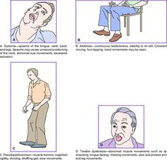 Extrapyramidal symptoms occurs with antipsychotics-> typicals -phenothiazines abnormal body movements resulting in non-compliance being an issue Nursing School Graduation, Nursing School Tips, Nursing Tips, Nursing Notes, Psychiatric Nurse Practitioner, Psychiatric Nursing, General Practitioner, Nursing Assessment, Nursing Mnemonics