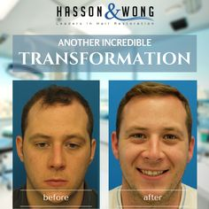 This patient had 4005 grafts. See more photos of his amazing transformation! #hairtransplant #hairloss #amazing #transformation #hassonandwong