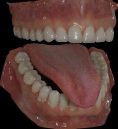 Click image for larger version  Name:dents du bas 0328s.jpg Views:551 Size:203.8 KB ID:24313