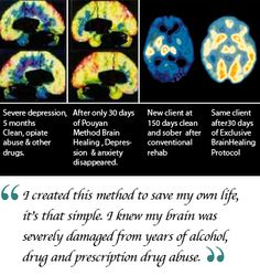 Brain Scan (Before and After)