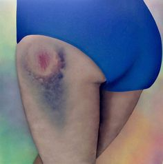 Roller Derby Kisses – When the bruises on thighs become works of art (image)