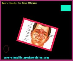 Natural Remedies For Sinus Allergies 201832 - Cure Sinusitis