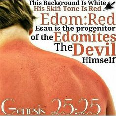 """GENESIS 25:25 And the first came out REd, all over like a hairy garment; and they called his name Esau. AS YOU CAN SEE THAT THE DECENDENTS OF ESAU ARE STILL HERE TODAY <a class=""""pintag searchlink"""" data-query=""""%23HEBREWS"""" data-type=""""hashtag"""" href=""""/search/?q=%23HEBREWS&rs=hashtag"""" rel=""""nofollow"""" title=""""#HEBREWS search Pinterest"""">#HEBREWS</a> <a class=""""pintag searchlink"""" data-query=""""%23EDOMITES"""" data-type=""""hashtag"""" href=""""/search/?q=%23EDOMITES&rs=hashtag"""" rel=""""nofollow"""" title=""""#EDOMITES search Pinterest"""">#EDOMITES</a> <a class=""""pintag searchlink"""" data-query=""""%23ISRAELITES"""" data-type=""""hashtag"""" href=""""/search/?q=%23ISRAELITES&rs=hashtag"""" rel=""""nofollow"""" title=""""#ISRAELITES search Pinterest"""">#ISRAELITES</a>"""