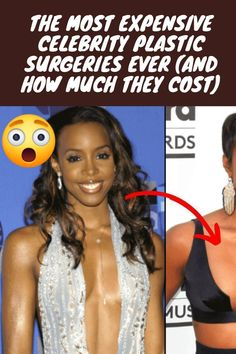 #Expensive #Celebrity #Plastic #Surgeries#Cost Cool Hairstyles For Girls, Haircuts For Men, Trendy Hairstyles, Girl Hairstyles, Couple Photography, Fashion Photography, Celebrity Plastic Surgery, Perfect Relationship, Long Lasting Lipstick