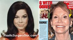 Mary Tyler Moore Plastic Surgery For Facelift Botched Plastic Surgery, Bad Plastic Surgeries, Plastic Surgery Before After, Plastic Surgery Gone Wrong, Botox Before And After, Celebrity Plastic Surgery, Old English Names, Middle English, Botox Results