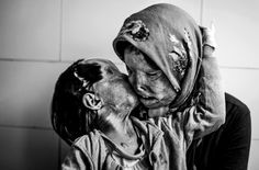 Somayeh Mehri, 29, and her 3-year-old daughter Ra'na had a bucket of acid poured on them by Somayeh's husband while they slept. Somayeh lost her ability to see and Ra'na lost one of her eyes..