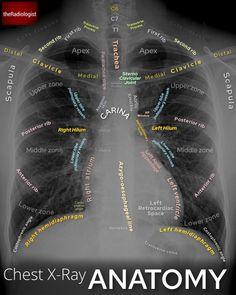 Radiology Student, Radiology Imaging, Icu Nursing, Nursing Notes, Diálisis Peritoneal, Medicine Student, Human Body Anatomy, Medical Anatomy, Medical Science