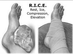 RICEM akut skadesbehandling af forstuvet ankel