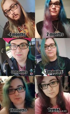 Post with 4855 views. One year and beginning to see some progress Male To Female Transition, Mtf Transition, Mtf Surgery, Trans Mtf, Male To Female Transformation, Transgender People, People Like, Amazing People, Gorgeous Women