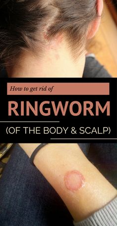 How to Get Rid of Ringworm (of the Body and Scalp)