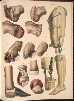 """Jacob Nicolas Henri    """"Amputation of the foot and leg, examples of prostheses""""    lithography, with hand-colouring    (from """"Traité complet de l'anatomie de l'homme"""" / 1831-1854)"""