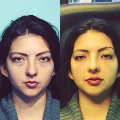 Cheek, Tear Trough & Lip Natural Injection Technique by Dr. Naderi