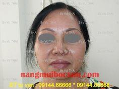 Mẹ và con gái  nâng mũi, nâng mũi bọc sụn http://nangmuibocsun.com