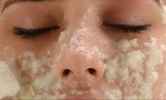 Wipe Off The Dark Spots On Your Face After Only Second Use!Direct exposure to the sun without protection by sunscreen can carry a variety of negative effects on the skin. One negative effect is dark spots. Blog Beauté Bio, Diy Beauty, Beauty Hacks, Dark Spots On Face, Brown Spots, Pigmentation, Unwanted Hair, Tips Belleza, Acne Scars
