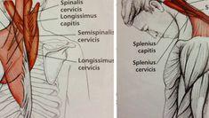 Сосудистая гимнастика лечит головные боли