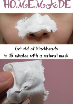 Get rid of blackheads in 15 minutes with a natural mask. Beauty, Get rid of blackheads in 15 minutes with a natural mask. Beauty Hacks For Teens, Get Rid Of Blackheads, Pimples, Homemade Face Masks, Facemask Homemade, Homemade Face Peel, Homemade Moisturizer, Homemade Recipe, Peeling