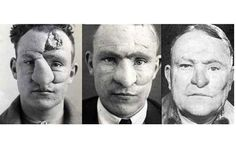 Pioneering plastic surgery records from First World War published - Telegraph