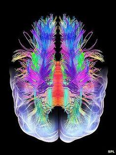 Diffusion tensor imaging. #MRI