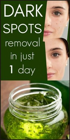 I Got Shocked With The Results Of This Magical Remedy, It Removed Dark Spot In 1 Day