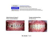 Casi clinici ortodontici Malocclusione di classe 3 http://www.studiodentisticobalestro.com/2014/12/malocclusione-di-classe-3.html