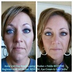 This is 2 months REDEFINE, Amp MD Roller, 1 month REVERSE, (and my absolute favorite), Redefine Multi-function Eye Cream and Eye cloths. First pic is heavy foundation and lots of concealer on my pic only R+F mineral peptides! Redefine Regimen, Rodan And Fields Redefine, Anti Aging Moisturizer, Anti Aging Skin Care, Homemade Moisturizer, Amp Md Roller, Face Exercises, Crows Feet, Sensitive Skin