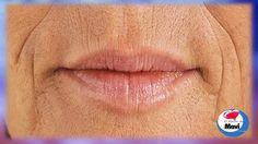 Remedios caseros para las arrugas alrededor de la boca   Tratamientos faciales naturales - http://solucionparaelacne.org/blog/remedios-caseros-para-las-arrugas-alrededor-de-la-boca-tratamientos-faciales-naturales/