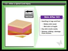 SCI-U: Skin - Part 7 (Skin Check, Pressure Relief). >>> See it. Believe it. Do it. Watch thousands of SCI videos at SPINALpedia.com Dry Skin, Your Skin, Spinal Cord Injury, Management Tips, It Works, Watch, Videos, Check, Clock