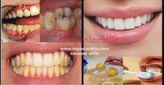 Tooth tartar herbal solution How yellowing passes- Tooth tartar herbal solution How to pass yellowing, # HERBAL # Solution # TOOTH # Passes # How - Oral Health, Dental Health, Le Trouble, Drugstore Skincare, Astral Projection, Listerine, Oily Skin Care, Hygiene, Korean Skincare