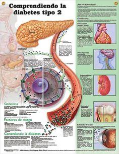 Diabetes: Comprendiendo la diabetes tipo 2 anatomy poster SPANISH (español) anatomy poster lists symptoms, risk factors, ways to control diabetes, showing glucose molecules.