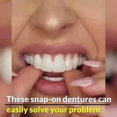 Perfect Teeth, Perfect Smile, Veneers Teeth, Teeth Braces, Receding Gums, Stained Teeth, Fiber Lash Mascara, Teeth Care, White Teeth