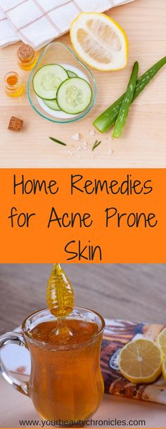 Heal your acne with these remedies found in your kitchen