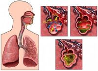 Can pneumonia cause asthma. Where did pneumonia originate. Why pneumonia vaccine. How pneumonia affects the heart. Throat Problems, Nursing Care Plan, Nursing Diagnosis, Bacterial Infection, Care Plans, Healthier You, Natural Remedies, Natural Treatments