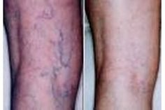 Home Remedies for Spider Veins (with Pictures) | eHow