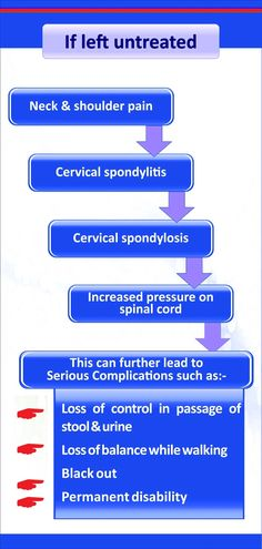 Cervical spondylosis Homeopathic treatment Neck Pain leads to hands Cervical Rediculopathy Cervical Cancer Stages, Cervical Cancer Ribbon, Prostate Cancer, Breast Cancer, Cancer Cells, Colon Cancer, Cervical Pain, Neck And Shoulder Pain, Neck Pain