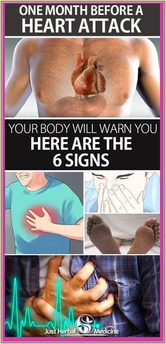 One Month Before a Heart Attack, Your Body Will Warn You – Here are the 6 Signs Health Tips, Health Care, Health Articles, Health Facts, Health Benefits, Oral Health, Nutrition Tips, One Month, Never Too Late
