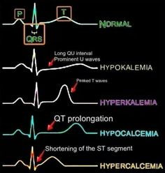 Very useful figure showing ECG Changes With Electrolytes Imbalance . Cardiac Nursing, Nursing Degree, Nursing Career, Pediatric Nursing, Nursing Tips, Ob Nursing, Pharmacology Nursing, Nursing Graduation, Funny Nursing