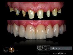 Korony pełnoceramiczne idealnie naśladują naturalne zęby