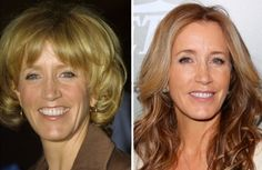 Felicity Huffman Plastic Surgery Before After Always interesting what you can find when you type in elective surgery and other related terms