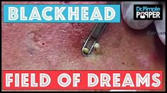 42 Best Dr  Pimple Popper images in 2018 | Blackhead